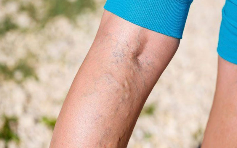 cause-of-varicose-veins-in-youth