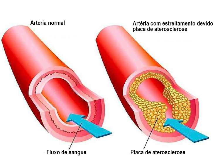grafico1