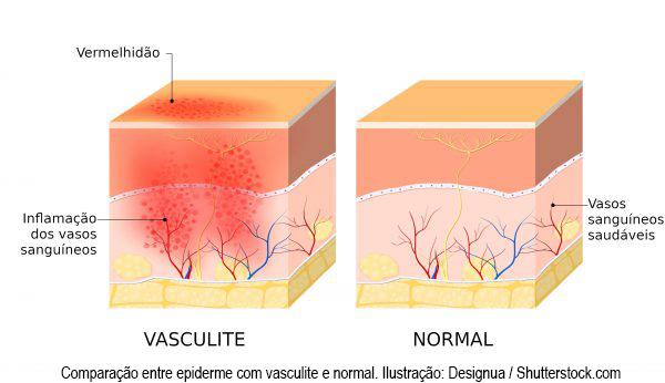 vasculite-1195928671-600x346