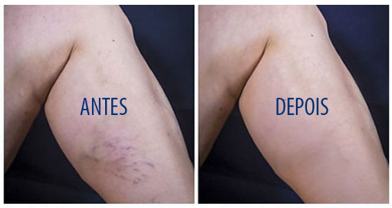 sclerotherapy (1)